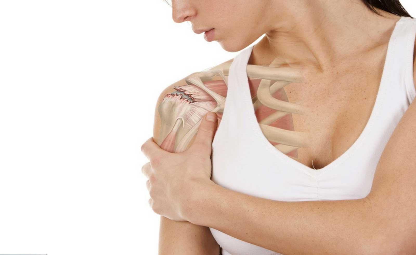 Tratamiento de la lesión del manguito rotador