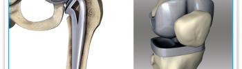 Tratamiento de fisioterapia en prótesis de cadera y rodilla